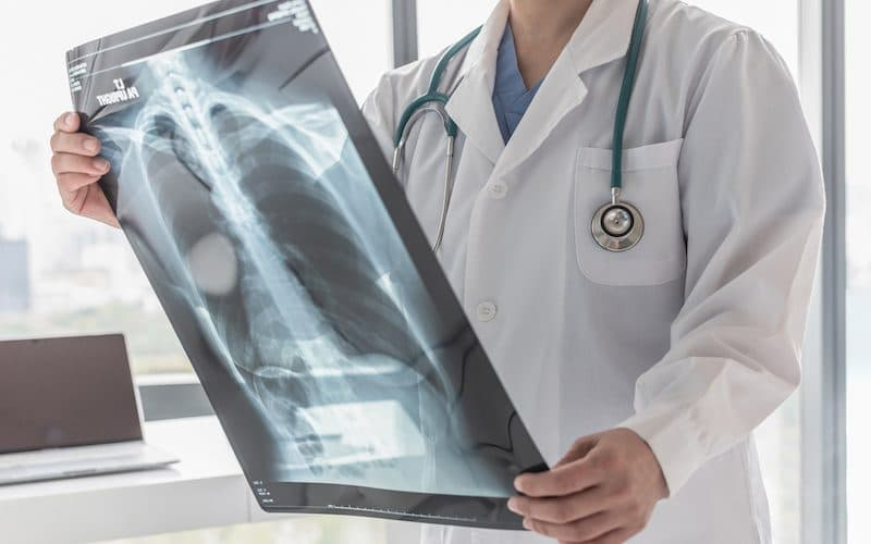 doctor looking at chest x-ray for respiratory conditions